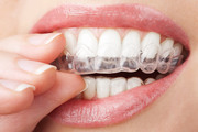 Straightning Teeth has become Easy with Smilelign
