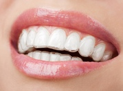 Smilelign - Right Answer For How To Straighten My Teeth
