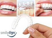 Smilelign Aesthetic Orthodontic Aligner System Provides Flexibility